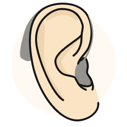 Behind-the-ear hearing aid works well for significant sensorineural hearing loss.
